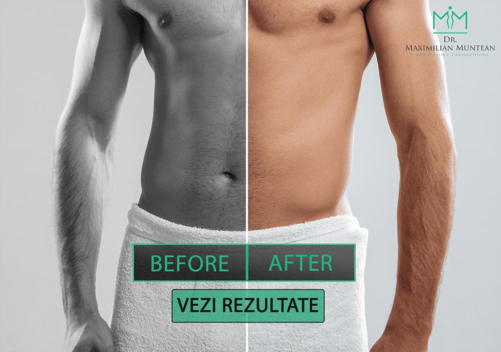 rezultate după intervenția chirurgicală de mărire a penisului
