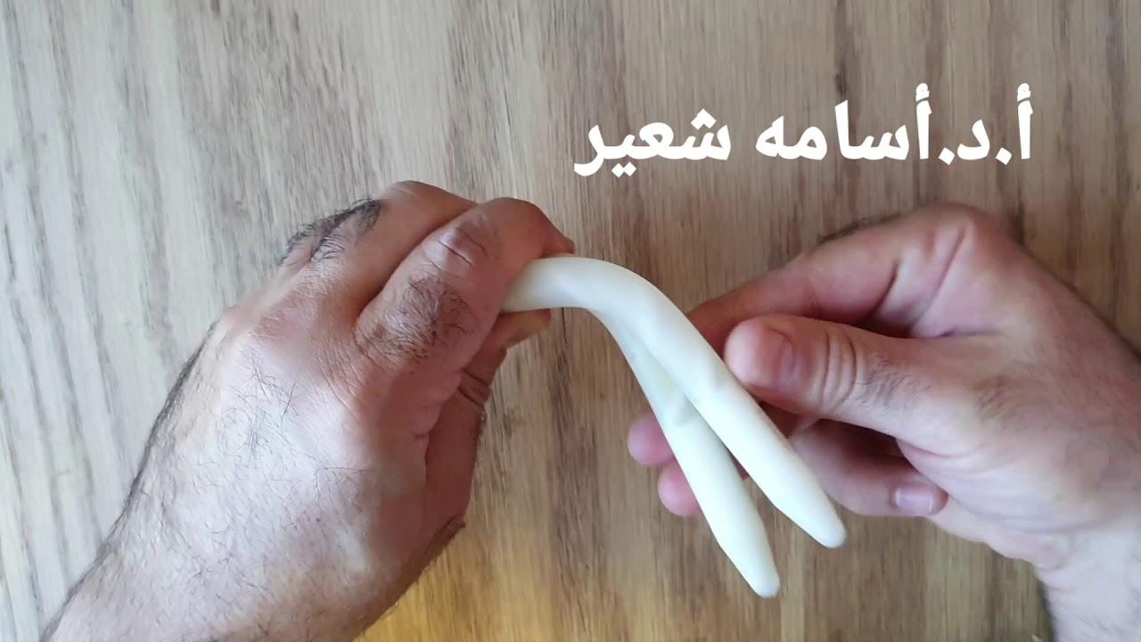 implant de erecție