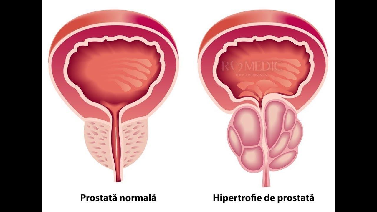 tratament de erectie pentru prostatita cronica)