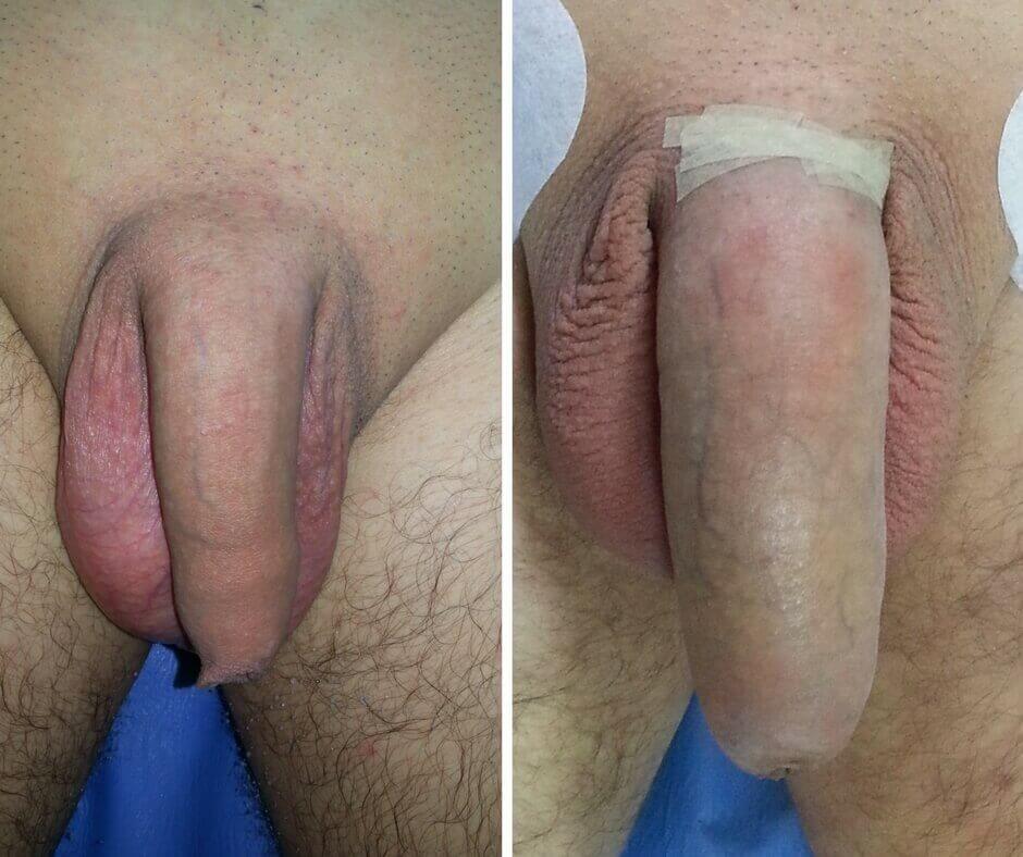 penis înainte și după erecție