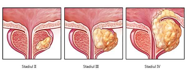 Prostata: cele mai comune boli ale acesteia si tratamentele | MedLife