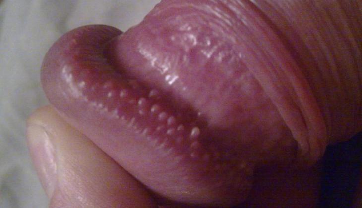 câți centimetri într- o stare de erecție
