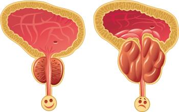 prostatita afectează erecția)