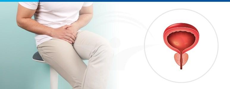 dacă există o erecție, atunci nu există prostată