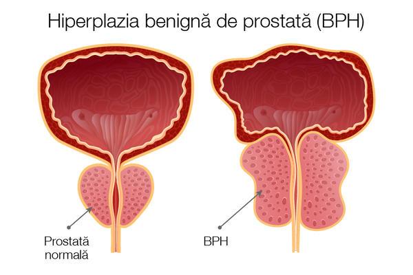 penis după prostatectomie