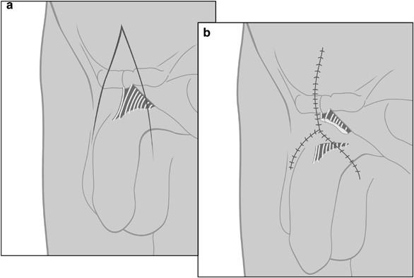 ligament penis