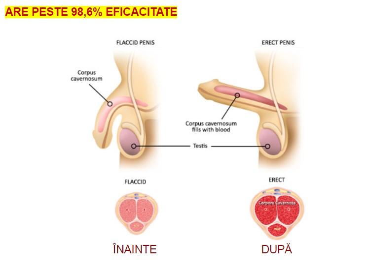erecție rapidă cum se poate evita