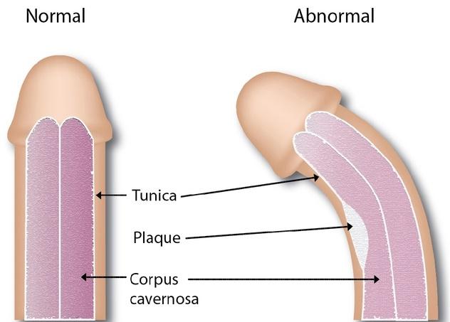 experimente pe penis duritatea penisului