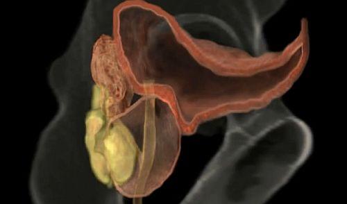 erecție după radiații