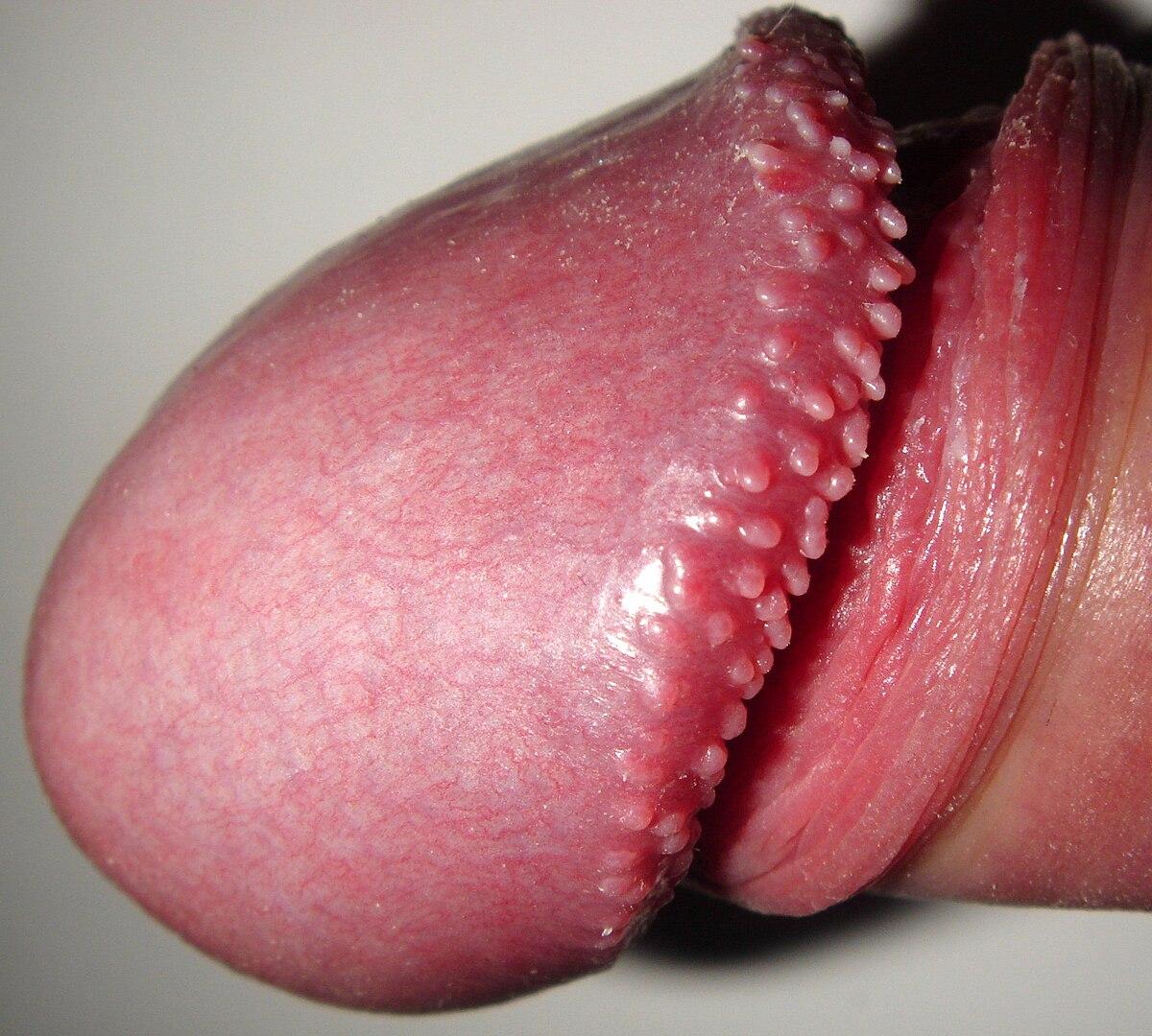 papillomo pe penis