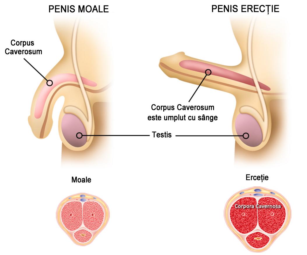 erecție penis moale ce este)