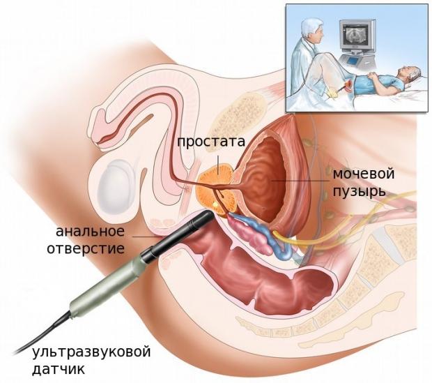 efectul prostatei asupra erecției