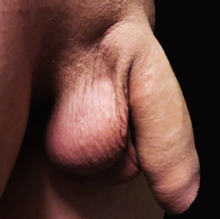 un bărbat cu erecție are un penis curbat