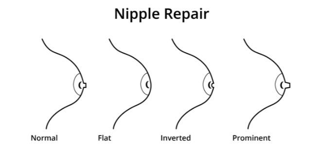 va schimba dimensiunea penisului