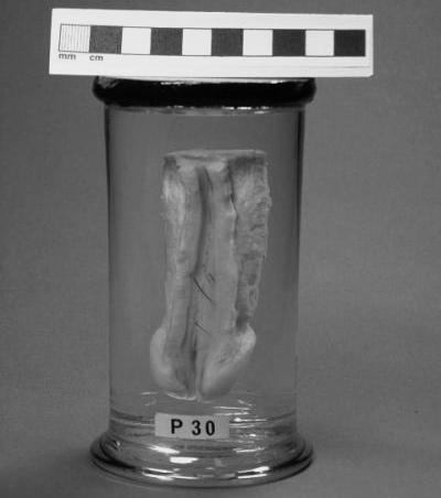 formalin penis chirurgie de erecție a penisului