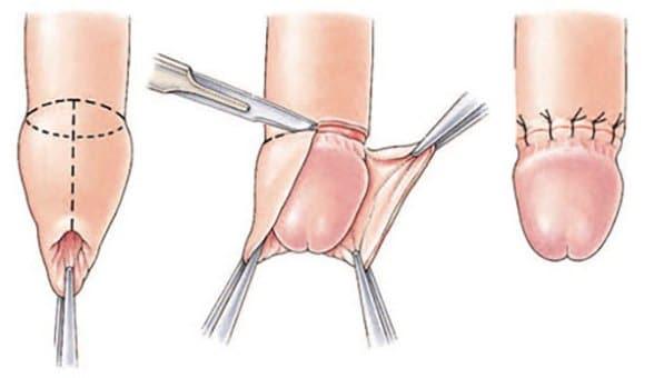 Circumcizia   Faloplastie