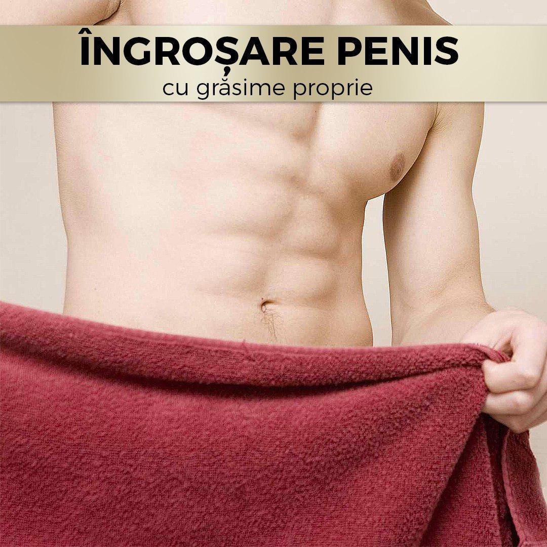pret chirurgie penis)
