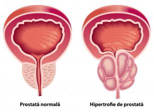 medicament pentru prostatită și erecție
