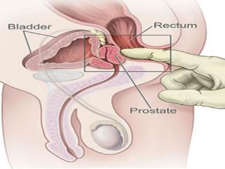 efectul prostatei asupra erecției)