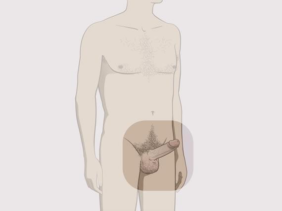 erecție când stau în picioare)