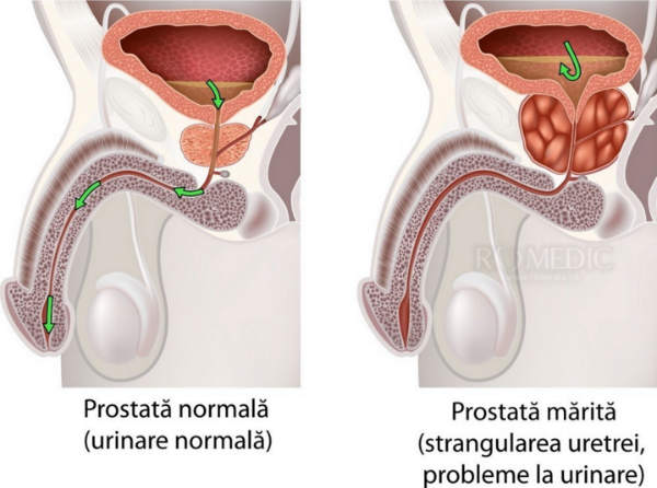după tratamentul pentru erecția prostatitei)