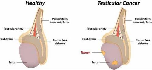 mărimea penisului testicular