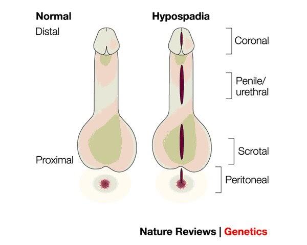 hipospadias penis)