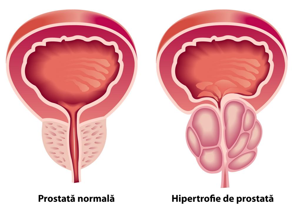 prostatită și lipsa de erecție)