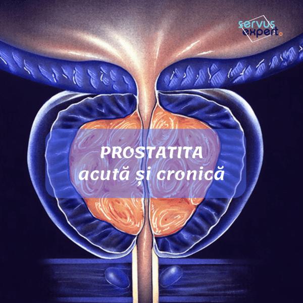 prostatita cronică a pierdut erecția)