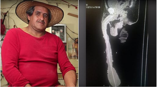 radiografia penisului