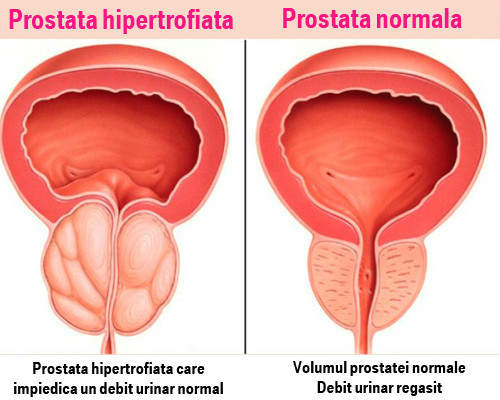 Prostatita duce la scăderea erecției
