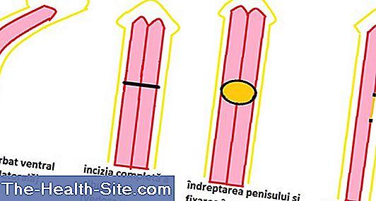 dimensiunea lungimii penisului