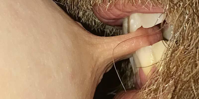 metoda de utilizare a manșonului penisului