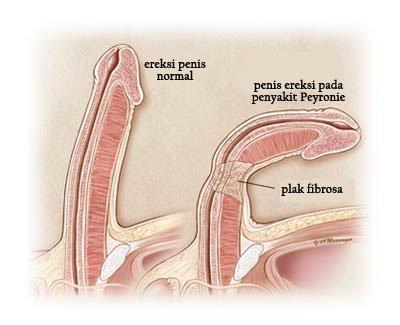 curbura penisului lateral