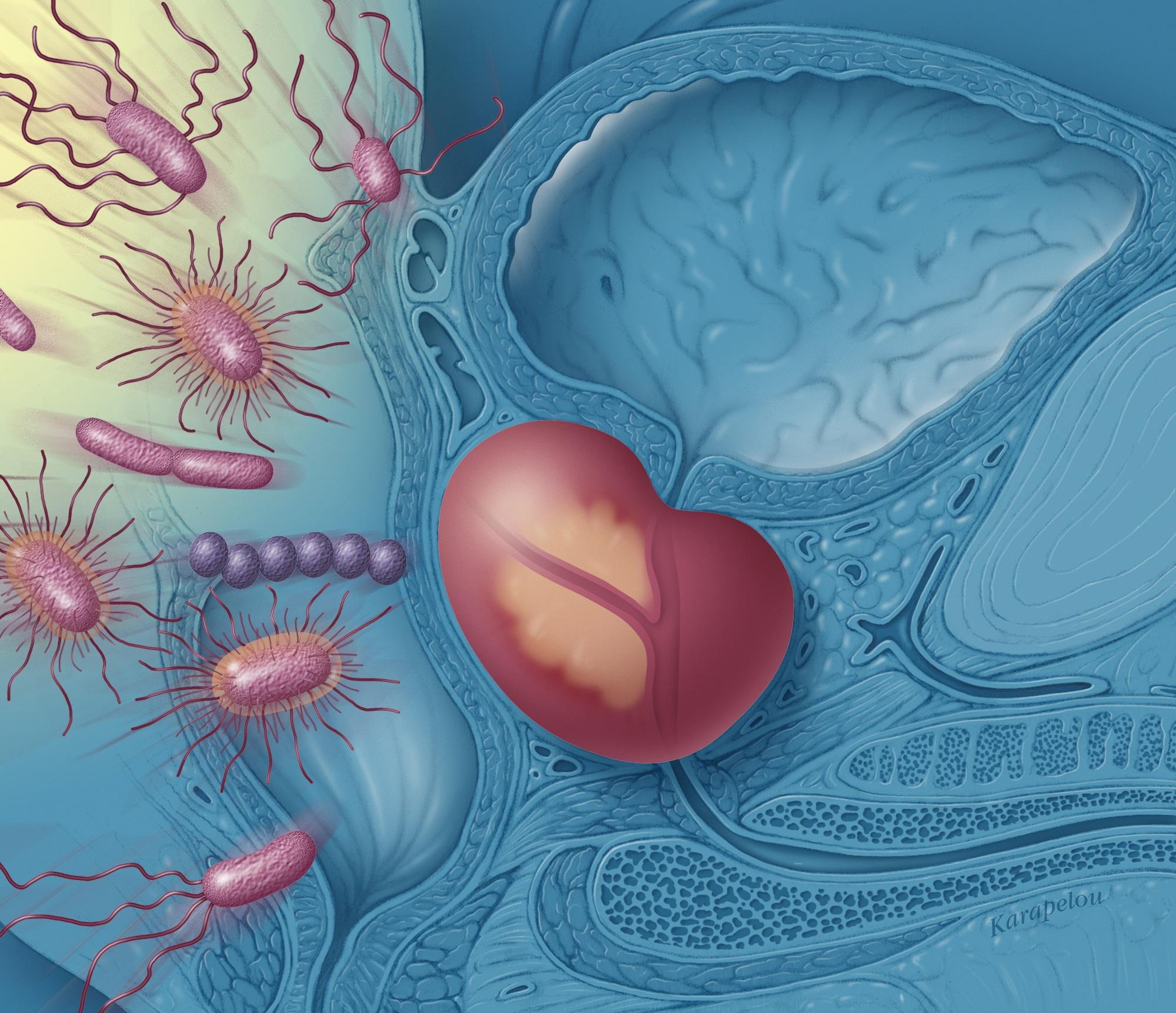 erecție frecventă cu prostatită)